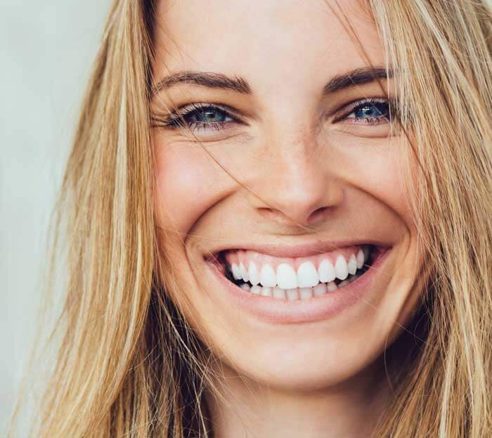 Woman smiling with clean teeth - Sedation